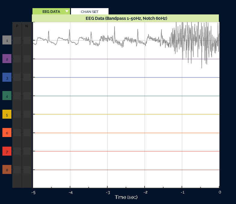 OpenBCI Screenshot of EKG test data with EMG artifacts