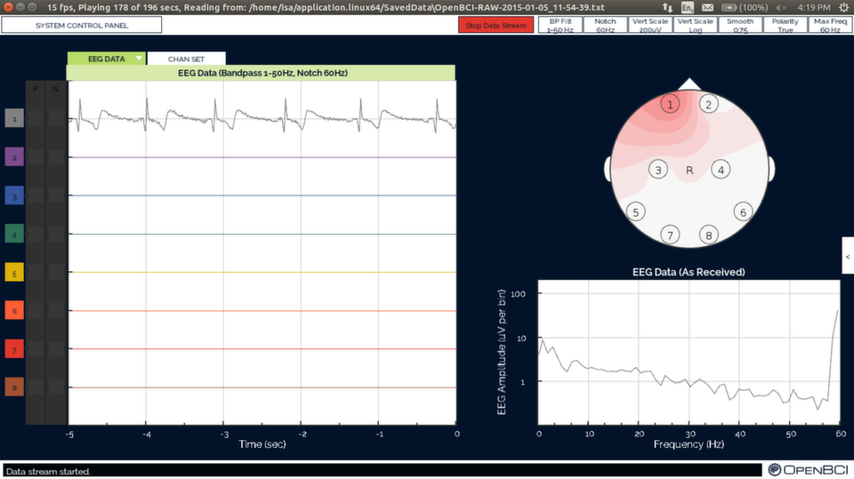 OpenBCI EKG Test Screenshot